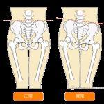 骨盤のゆがみを解消!股関節ストレッチの詳細へ